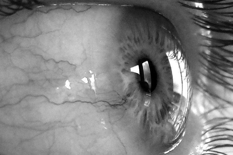 Ojos que aún siguen ahí, por Ariel F. Cambronero Zumbado
